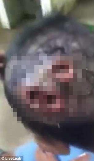 Şok kadrlar: oğlanın başından qurdlar çıxarıldı - VİDEO - FOTO