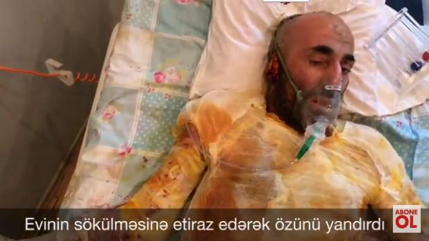 Evinin sökülməsinə etiraz edərək özünü yandıran kişi öldü – Bakıda (VİDEO 18+)