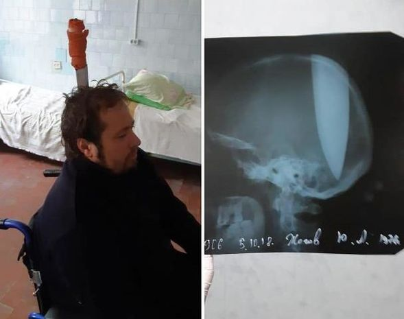 Başına bıçaq sancılan rusiyalı zökəmdən şikayətləndi – VİDEO (18+)