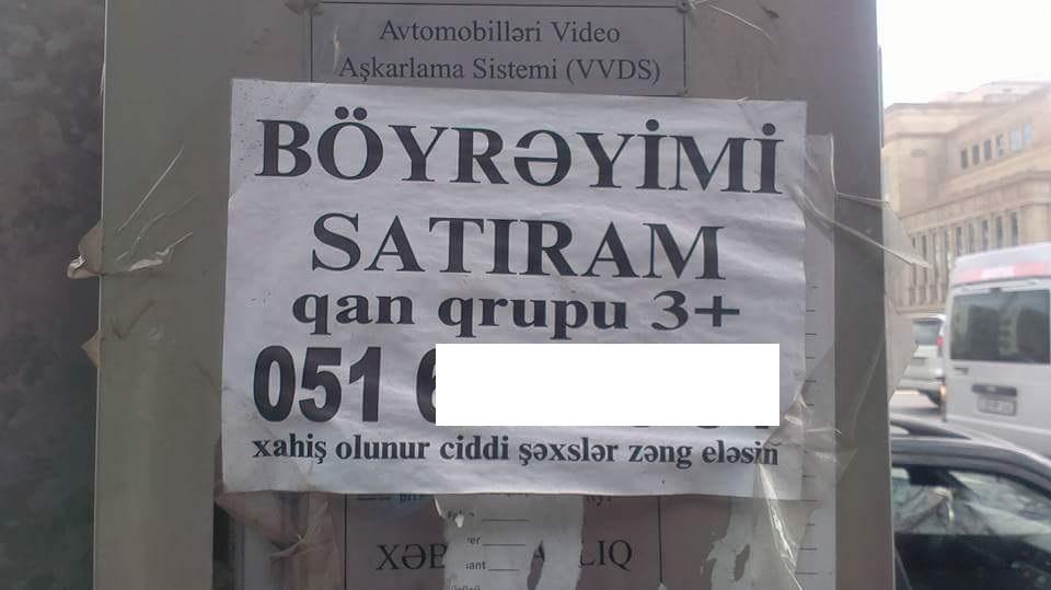 Böyrəyini satmaq istəyən azərbaycanlılar…