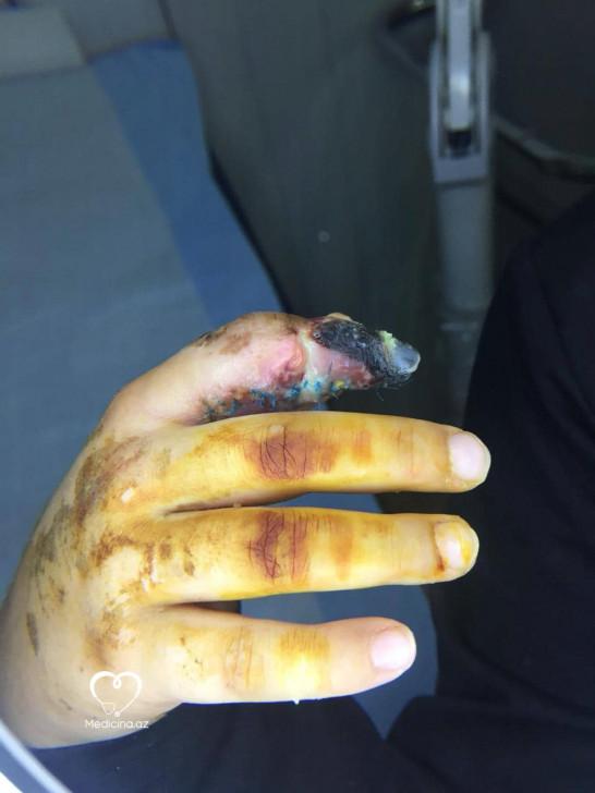 Plastik cərrah Vaqif Qələndərli 8 yaşlı uşağı şikəst edib? – (FOTOLAR)