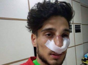 Mahir Mədətov qapıçının burnunu sındırdı – VİDEO