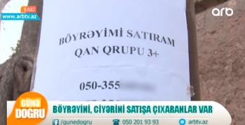 """""""Böyrəyimi ehtiyacdan satıram"""" – Paytaxtda qanunsuz orqan satışı – VİDEO"""