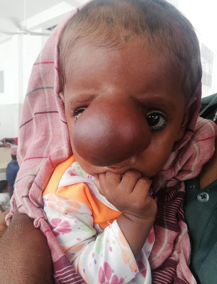 Beyni burnunda yerləşən uşaq doğulub – FOTO