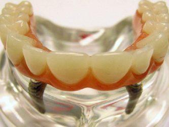 Diş implantları təhlükəli imiş – ALİMLƏRDƏN XƏBƏRDARLIQ